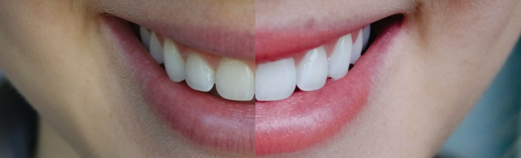 Affordable at home teeth whitening